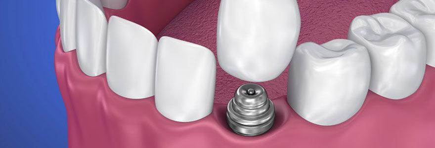 Implant dentaire en Hongrie